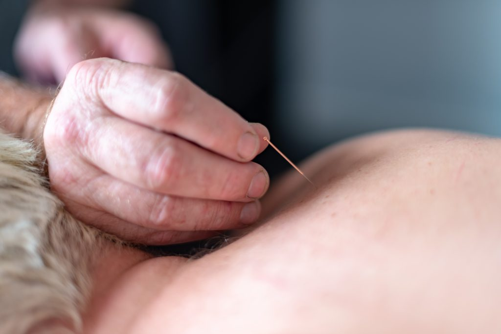 dry needling on a patients upper back