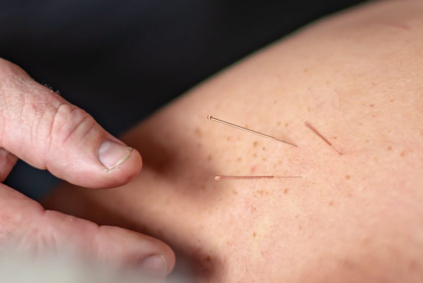 dry needling on a patient