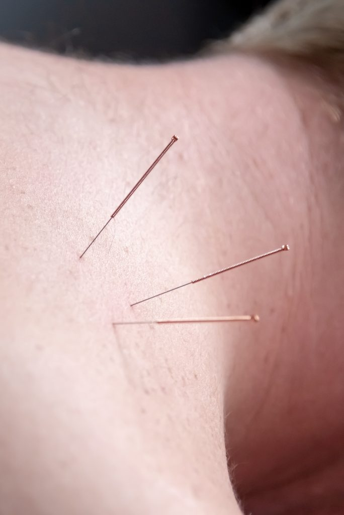 Dry needling for acute pain in patients lower neck