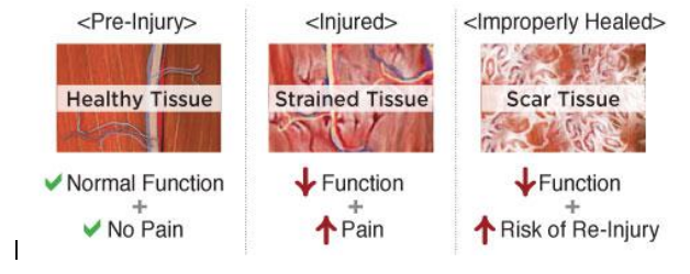 image demonstrating muscle strain
